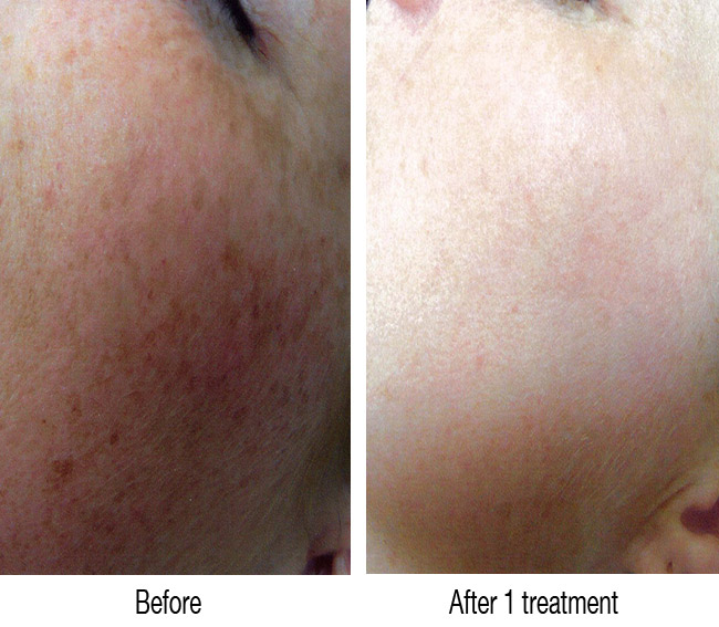 Freckle Pigment Removal in Newcastle